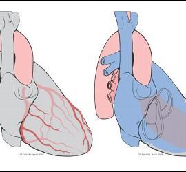 Resultado de Impresora 3D de órganos.