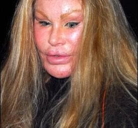 Jocelyn Wildenstein.