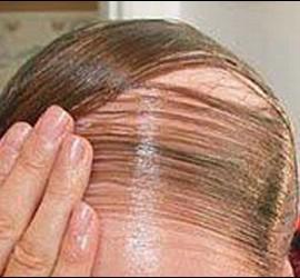 Calvo, calvicie y alopecia.