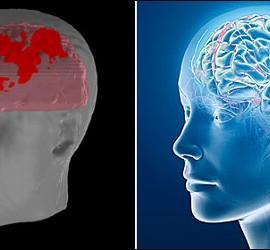 El cerebro humano.