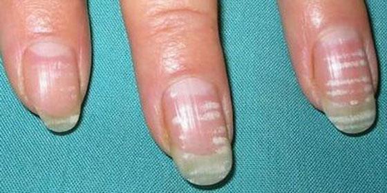 Ногти обрезанные 85