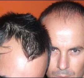 Calvo, alopecia, pelo y caída del cabello.