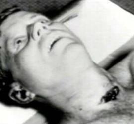 El presidente John F. Kennedy, muerto.