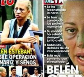 Las portadas de las revistas 'Pronto' y 'Sálvame' en las que aparece Belén Esteban tras su nueva operación de cirugía estética.