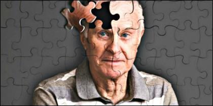 Alzheimer, edad, vejez y memoria.