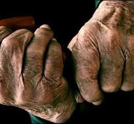 Edad, manos, vejez y enfermedad.