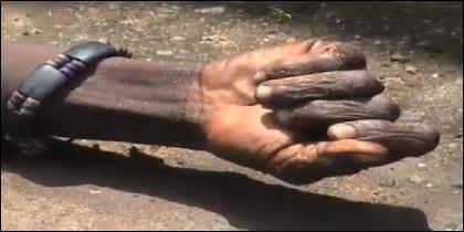 La mano del 'falso' muerto por ébola