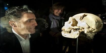 Cráneo Miguelón y Miguel Indurain