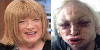 Kellie Maloney, antes y después