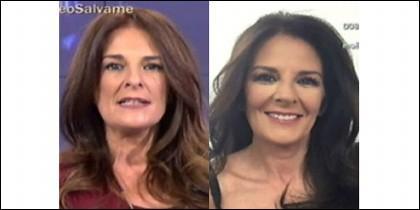 El antes y después de la operación.