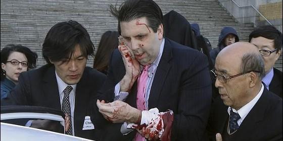 Mark Lippert, embajador de EEUU en Corea.