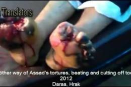 Las torturas en Siria