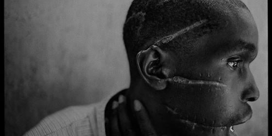 Un superviviente del Genocidio de Ruanda, con las cicatrices de los machetazos en su cabeza (1994).
