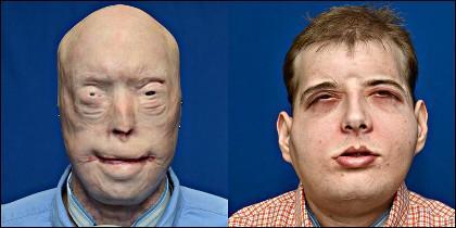 El bombero Patrick Hardison, antes y después.