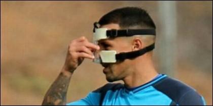 Víctor Añino 'Vitolo' con la máscara por la rotura de nariz (FC TENERIFE).