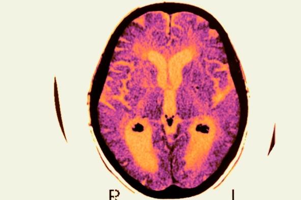 La hipótesis amiloide está muerta