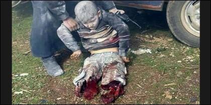 El niño sin piernas en Siria