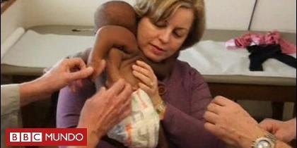 La bebé a la que extirparon de la espalda un 'gemelo parasitario'