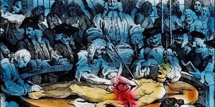 Las autopsias, así como las ejecuciones, se hacían frente al público