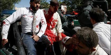 Civiles afganos heridos en el atentado islamista en Kabul.