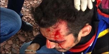 Un manifestante opositor herido en Venezuela.