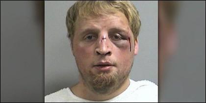 El violador agredido.