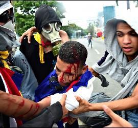 Represión en la Venezuela chavista, contra amifestantes opositores.