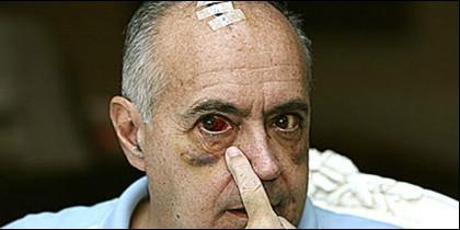 José Luis Moreno, victima de un asalto de las bandas albanokosovares.