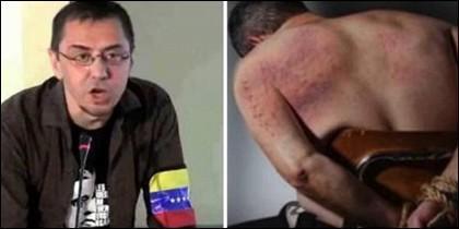 Juan Carlos Monedero y un venezolano maltratado.