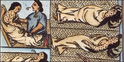 Aztecas infectados de viruela. Courtesy Granger Collection, New York