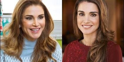 Rania de Jordania antes y despues del botox