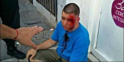 Germán Acosta, el acosador, tras recibir la paliza.