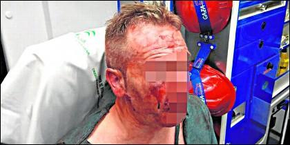 El policía agredido en Córdoba.