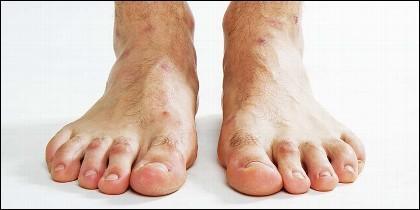 Pies, dedos, descalzo.
