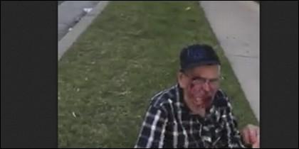 Anciano agredido