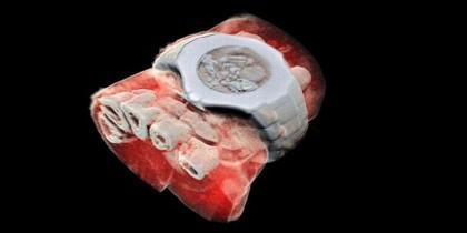 Imagen en 3D de rayos X en color