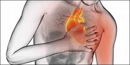 Hay diferencia entre ataque cardíaco y paro cardíaco.