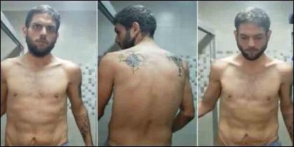 El diputado Juan Requesens, torturado en las mazmorras del chavista Maduro.