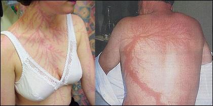 Rayo sobre la piel