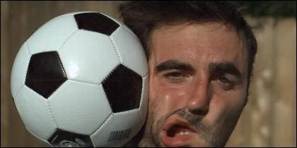 Balonazo en la cara