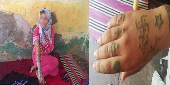 Khadija Okkraou y las marcas que le tatuaron sus violadores y torturadores.