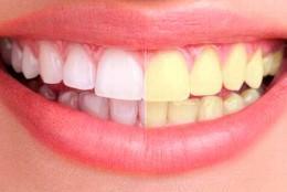 Dentadura blanca