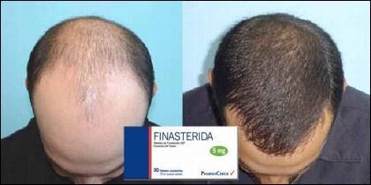 La finasterida, un fármaco utilizado en el tratamiento de la alopecia masculina.