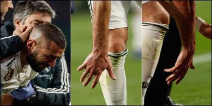 Benzema se fractura el dedo meñique.