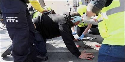 Simpatizantes de VOX herido en la cara por una pedrada.