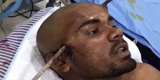 Barra le atravesó el cráneo (FUERTE FOTO) — Sobrevive de milagro