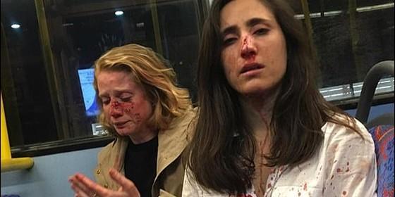 Hombres golpean a pareja LGBT+ por negarse a 'entretenerlos'