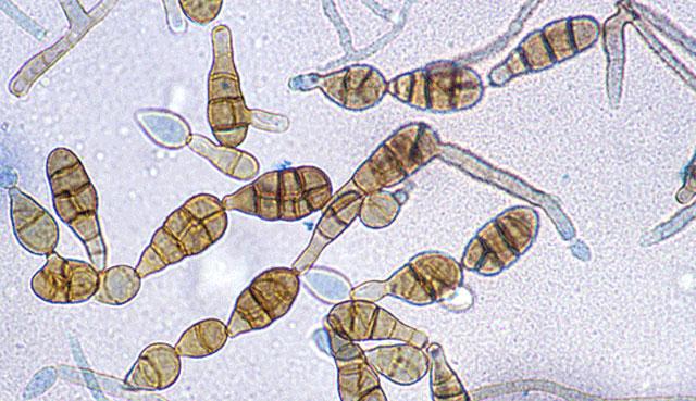 C mo evitar la alergia a los hongos - Lejia para los hongos ...