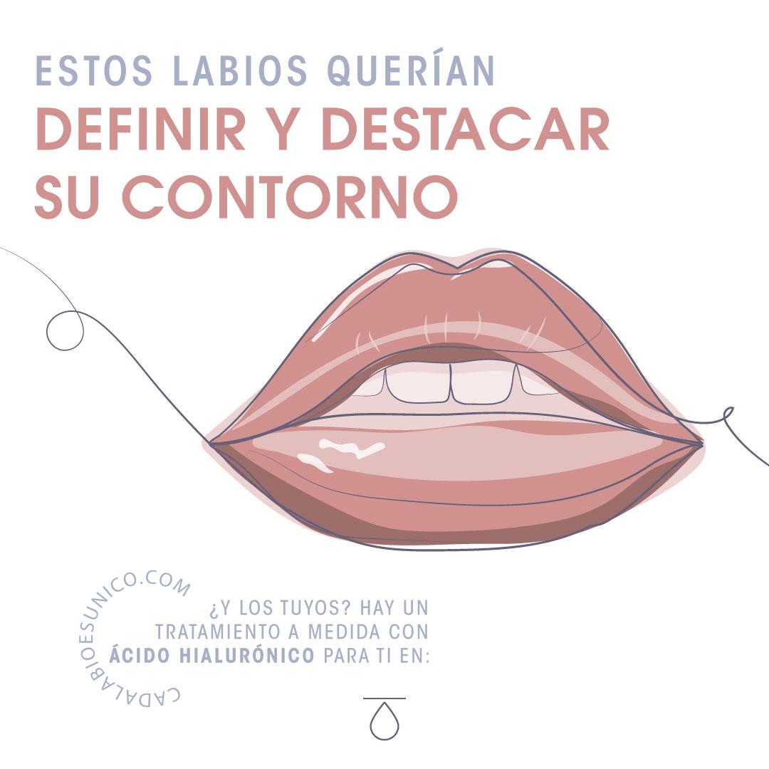 Teoxane labios