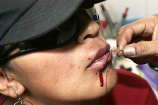 Las prostitutas de Bolivia se cosen los labios en protesta contra Evo Morales